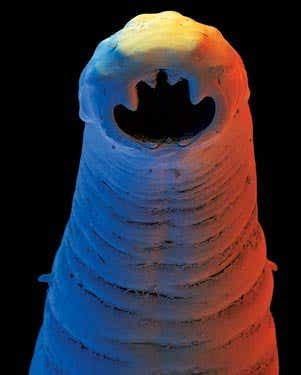 The enemy within: 10 human parasites | New Scientist