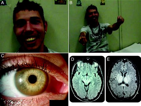 Teaching Video NeuroImages: Excessive grinning in Wilson