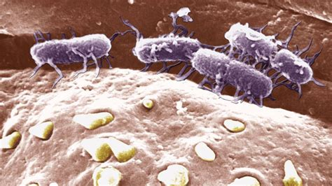 Drug-resistant typhoid fever becoming an epidemic in