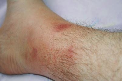 What are the Familial Mediterranean Fever Symptoms